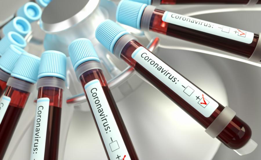 FAQ sul coronavirus, nell'immagine tante provette positive al coronavirus in una centrifuga